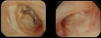 cartilage-sur-pr.png