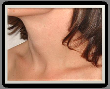 Pathologies du cou