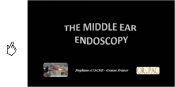 film-middle-ear-endoscopy.png
