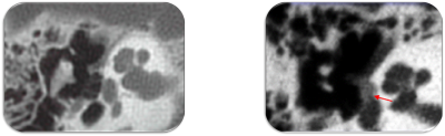 tdm-otospongiose-1.png