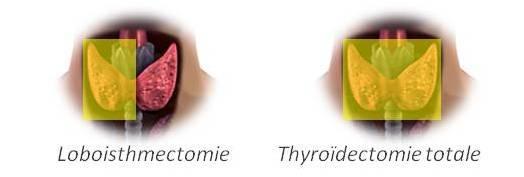 thyr-lobectomie-ou-totale-1.jpg