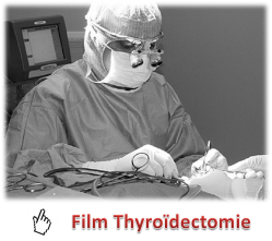 video-thyroidectomie-2.png